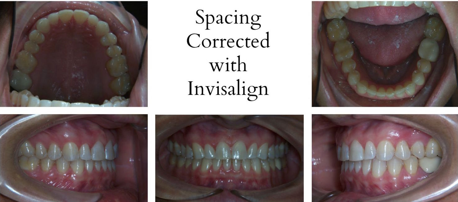 Invisalign Before And After Gap Before and After - Ort...